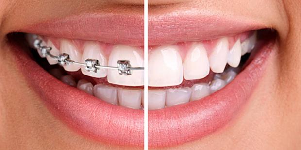 Medicaid Orthodontic Braces in Illinois