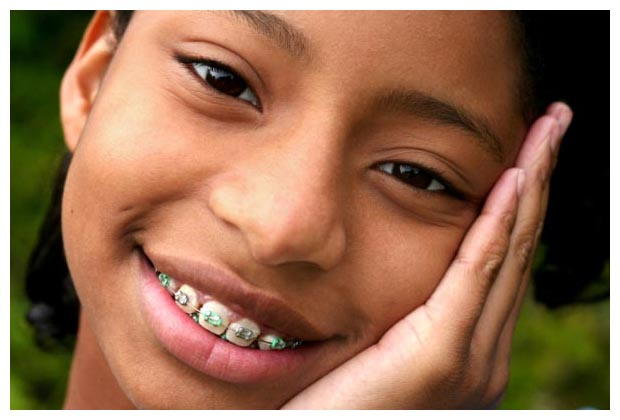 Braces with the Medical Card Illinois